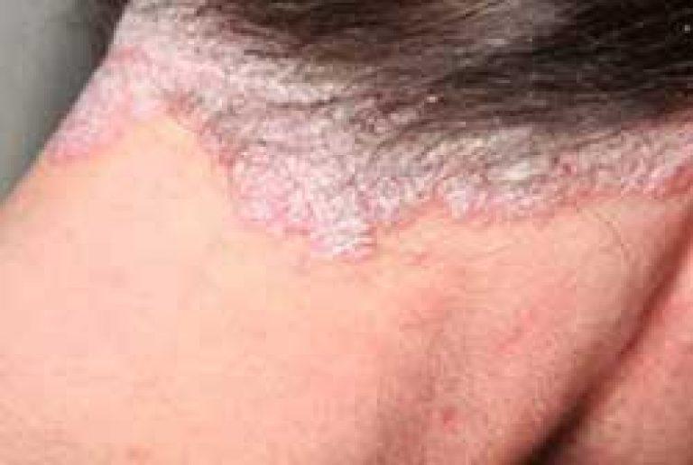 pikkelysömör népi gyógymódok viburnum