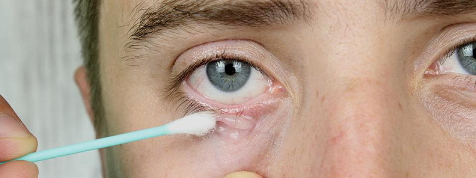 pikkelysömör a szemhéjon kenőcs kezelés vörös foltok jelentek meg az egész testben, viszketve