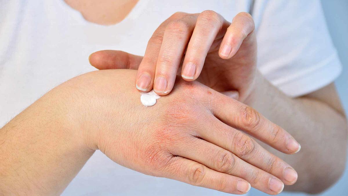 illóolajokkal pikkelysömör kezelése vörös foltok a csukló bőrén