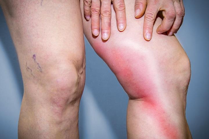 piros foltok a lábakon és a karokon fotó és leírás