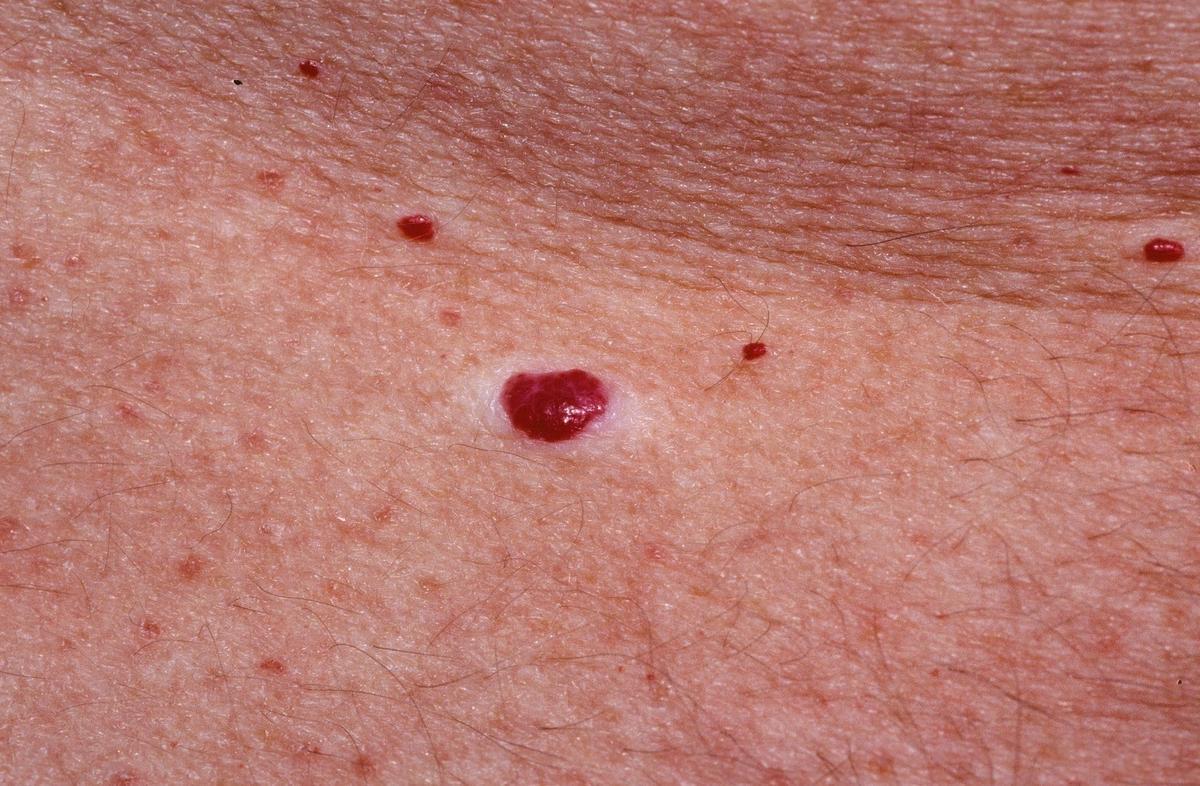 piros száraz folt a lábán, hogyan kell kezelni reamberin a pikkelysmr kezelsre