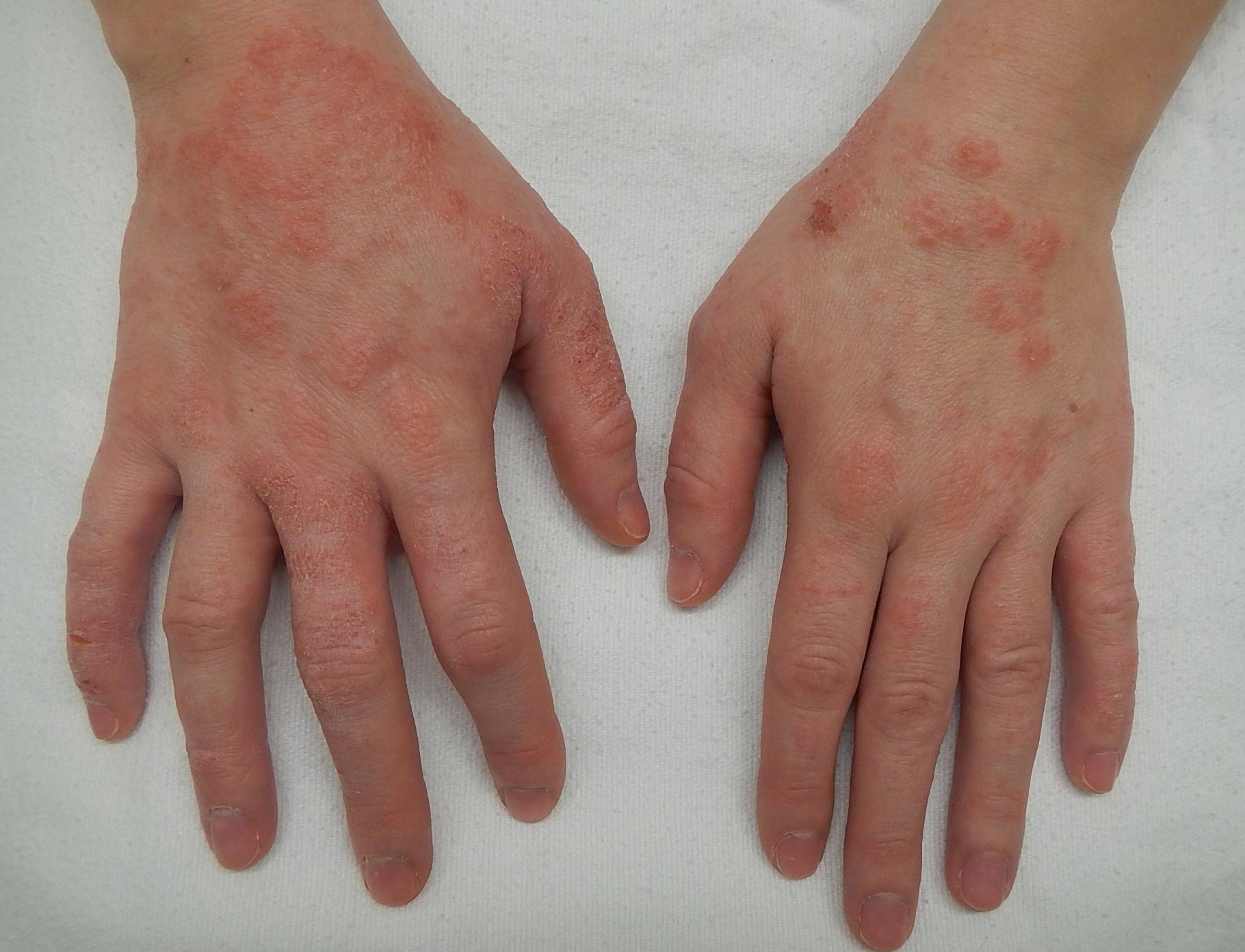 vörös foltok a testen viszketnek, hogy a kezek duzzadnak Vörös foltok vannak a testemen, és viszket, mit kell kezelni