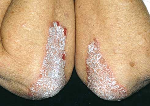 gyógyított pikkelysömör vélemények szabályos kerek alakú vörös foltok a bőrön