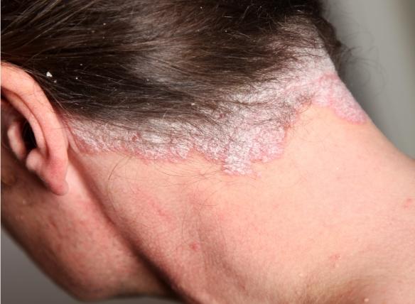 a fej pikkelysömörének kezelésének jellemzői vörös folt a karon viszketés nélkül