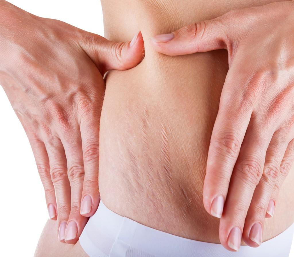 vörös foltok a csukló bőrén ha a hónalj alatt vörös foltok vannak és viszketnek