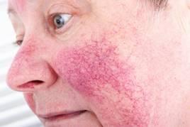vörös pillangó alakú folt az arcon kezeli az ízületeket a pikkelysömörhöz