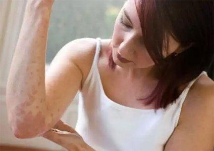 immunmodulátorok a pikkelysömör kezelésében hogyan kell kezelni a guttate pikkelysömörét