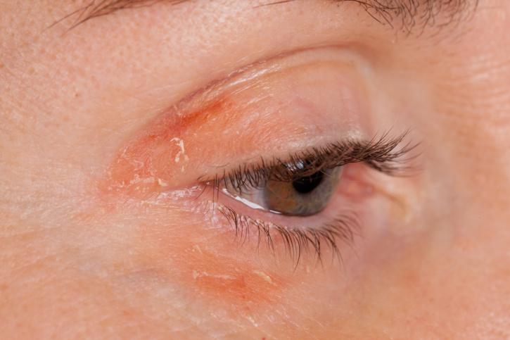 aktív szén kezelések pikkelysömörhöz vörös foltok a játékterrier hasán