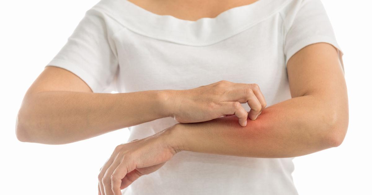 vörös foltok a bőr dermatológiáján