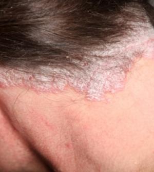 pikkelysömör a haj otthoni kezelsben lonc pikkelysömör kezelése