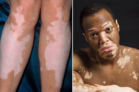 seborrheás dermatitis vörös foltok az arcon foltok vörös szegéllyel a lábakon