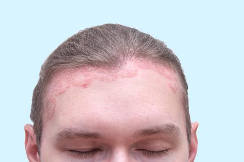 vörös foltok az arcon lehúzódnak okok fotó