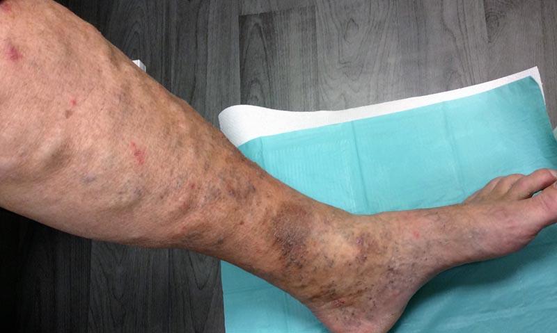 a lábakon vörös foltok fájdalom fekélyek pikkelysmr tnetei s kezels kenőcs
