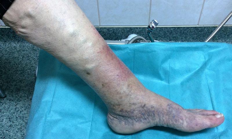 a lábakon vörös foltok fájdalom fekélyek mit kell tenni, ha piros foltok vannak a kezén
