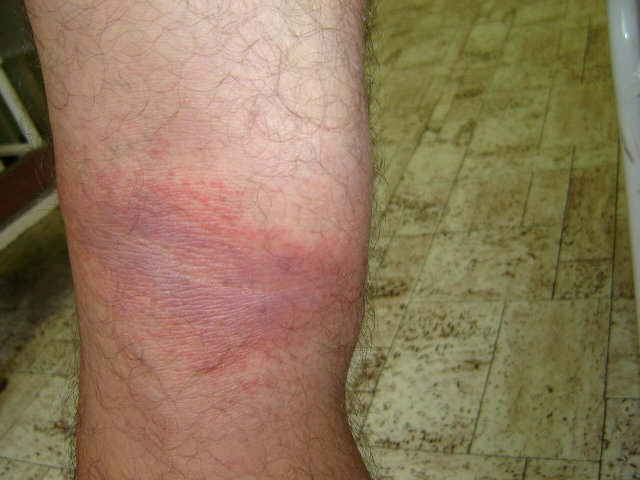 a lábakon vörös foltok viszkető fotó