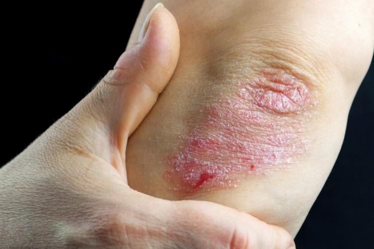 fejbőr psoriasis kezelése népi gyógymódokkal
