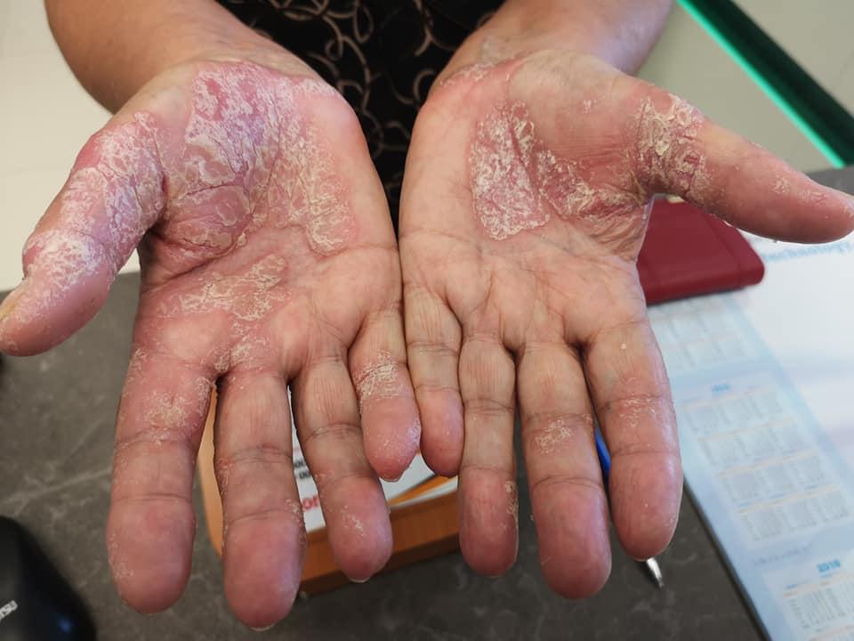 bőr alatti vörös folt a lábán pikkelysömör krém képek