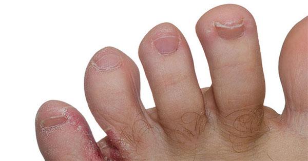 a vörös folt viszketés nélkül hámlik le pikkelysömör kezelése velingradban
