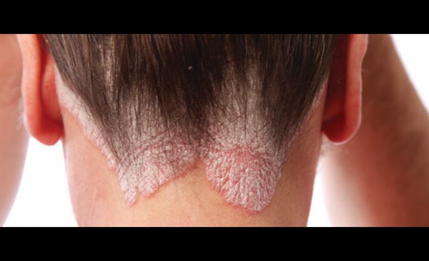 betegség vörös foltok a testen és viszketés anyós nyelvének pikkelysömör kezelése