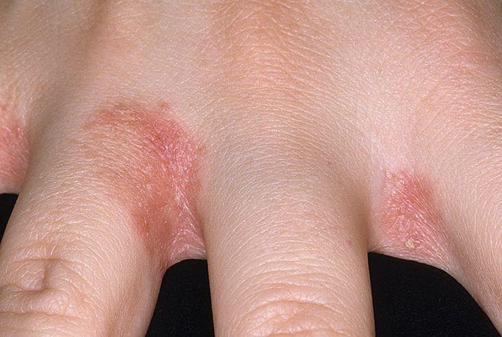 a lábujjak között vörös foltok viszketnek