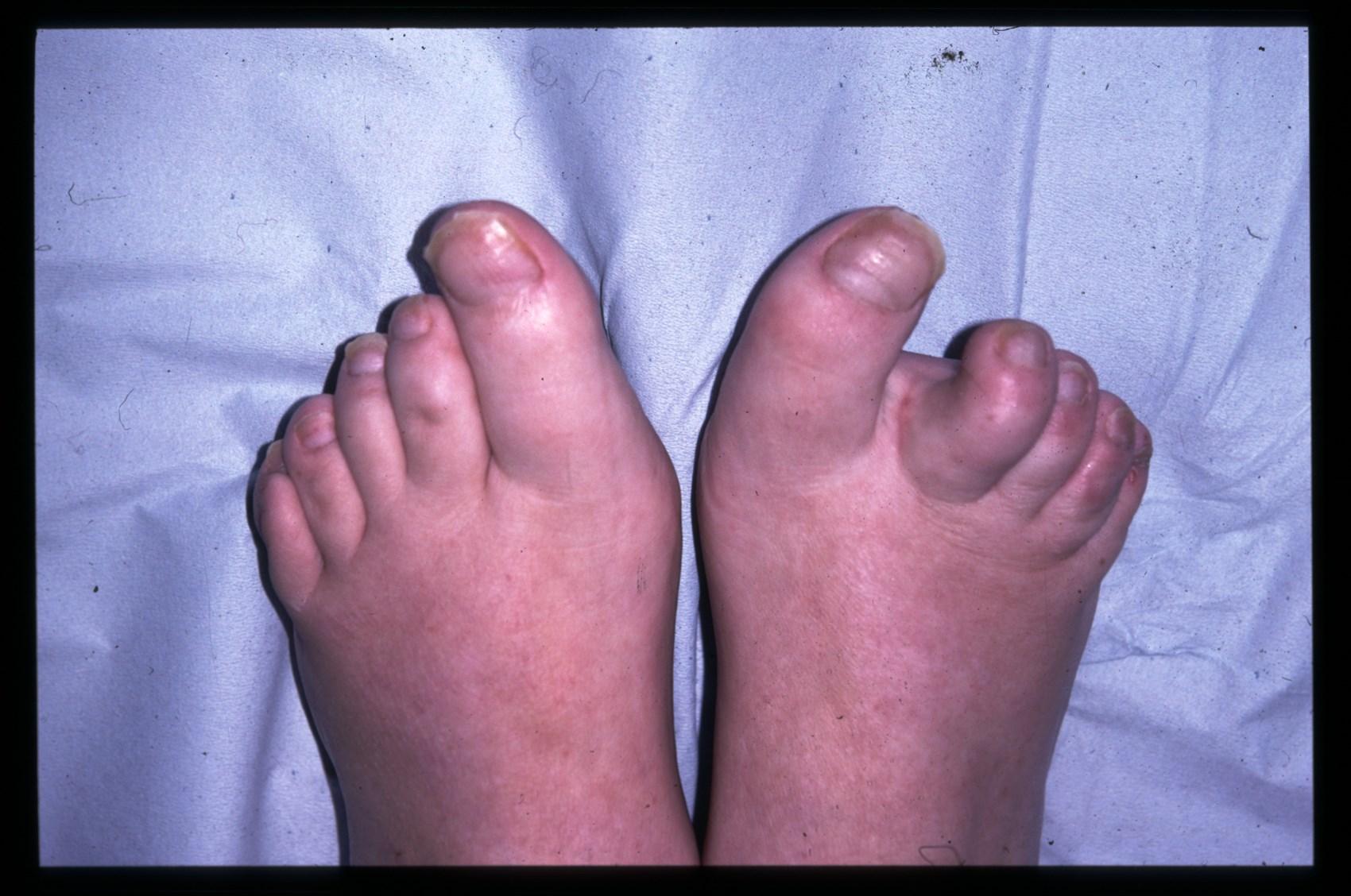 psoriasis on toes kezelés vörös durva foltok a lábakon és a karokon
