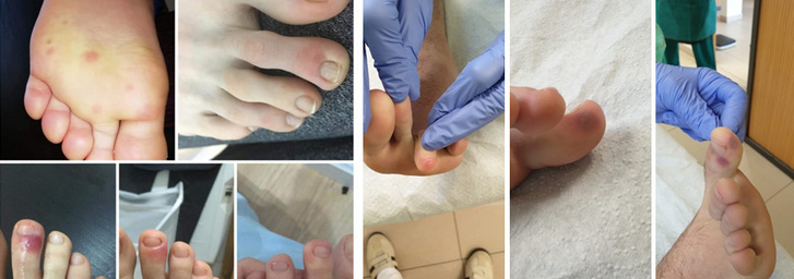 gyulladáscsökkentő gyógynövények pikkelysömör bőrére pikkelysömör kezelése a test tisztításának módszerével