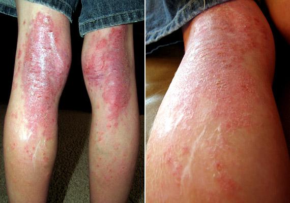 a test viszket és vörös foltok vannak a lábakon