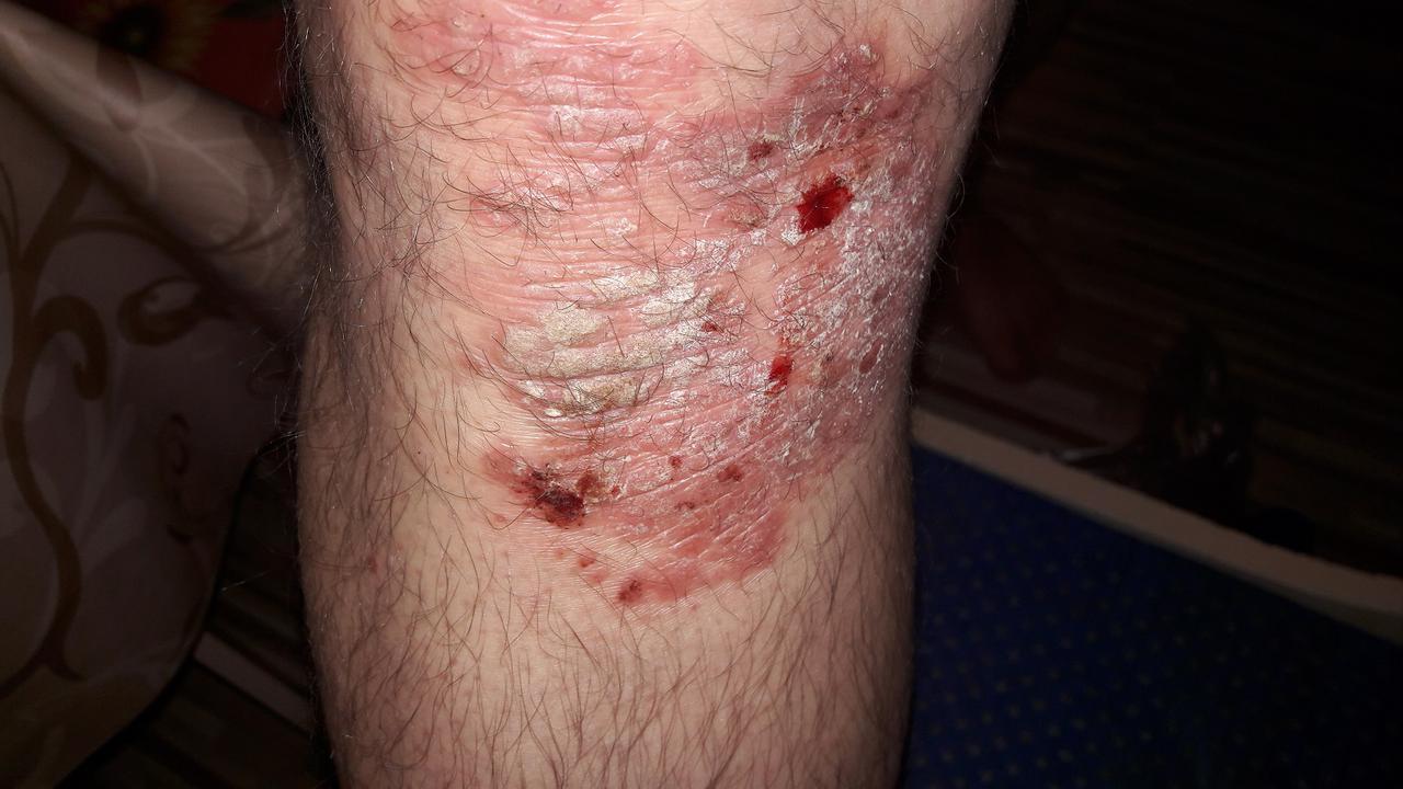 pikkelysömör kezelésére szolgáló blogok neorális a pikkelysömör kezelésében
