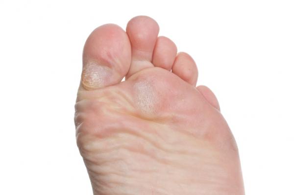 A bőr gombás megbetegedései   Kárpátalja
