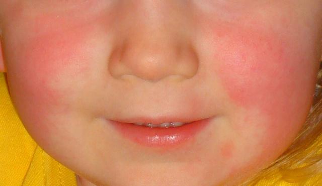 vörös foltok az arc bőrén fotó és a betegség neve vörös foltok a lábon és duzzanat