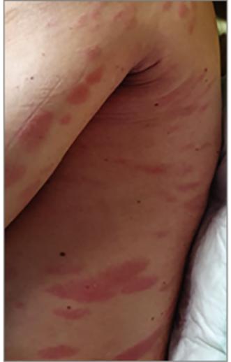 vörös foltok a csukló bőrén pikkelysmr tnetei hogyan kezeli