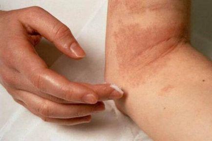 diazolinum pikkelysömör kezelése