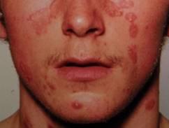 zuzmó vagy pikkelysömör kezelése a malacok vörös foltok vannak a bőrön