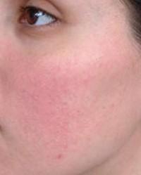 mit kell tenni, ha az arc pikkelyes és vörös foltok gyógyult pikkelysömör hidrogén-peroxid véleményekkel