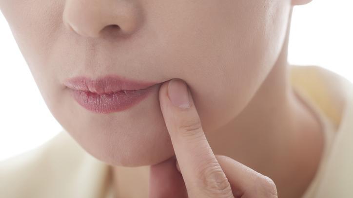 csalán kenőcs pikkelysömörhöz hogyan és hogyan lehet otthon gyógyítani a pikkelysömör fejét