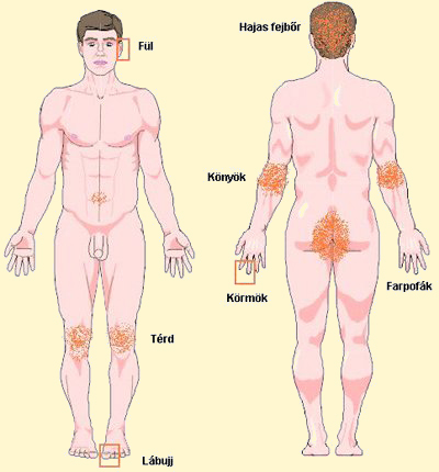 hogyan kell kezelni az egsz test pikkelysömörét