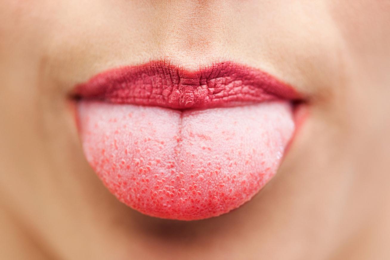 pikkelysömör kezelés blokkolók vörös foltok az orr alatt hogyan kell kezelni
