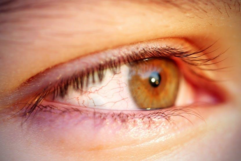 hogyan lehet eltávolítani a vörös foltot a szemről Scrap Psoriasis Treatment Suite