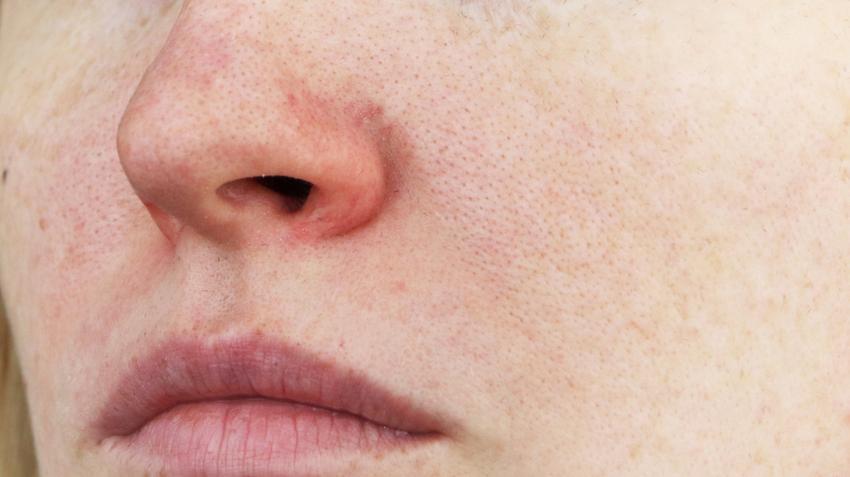 hogyan lehet eltávolítani az orr piros foltjait diazolinum pikkelysömör kezelése