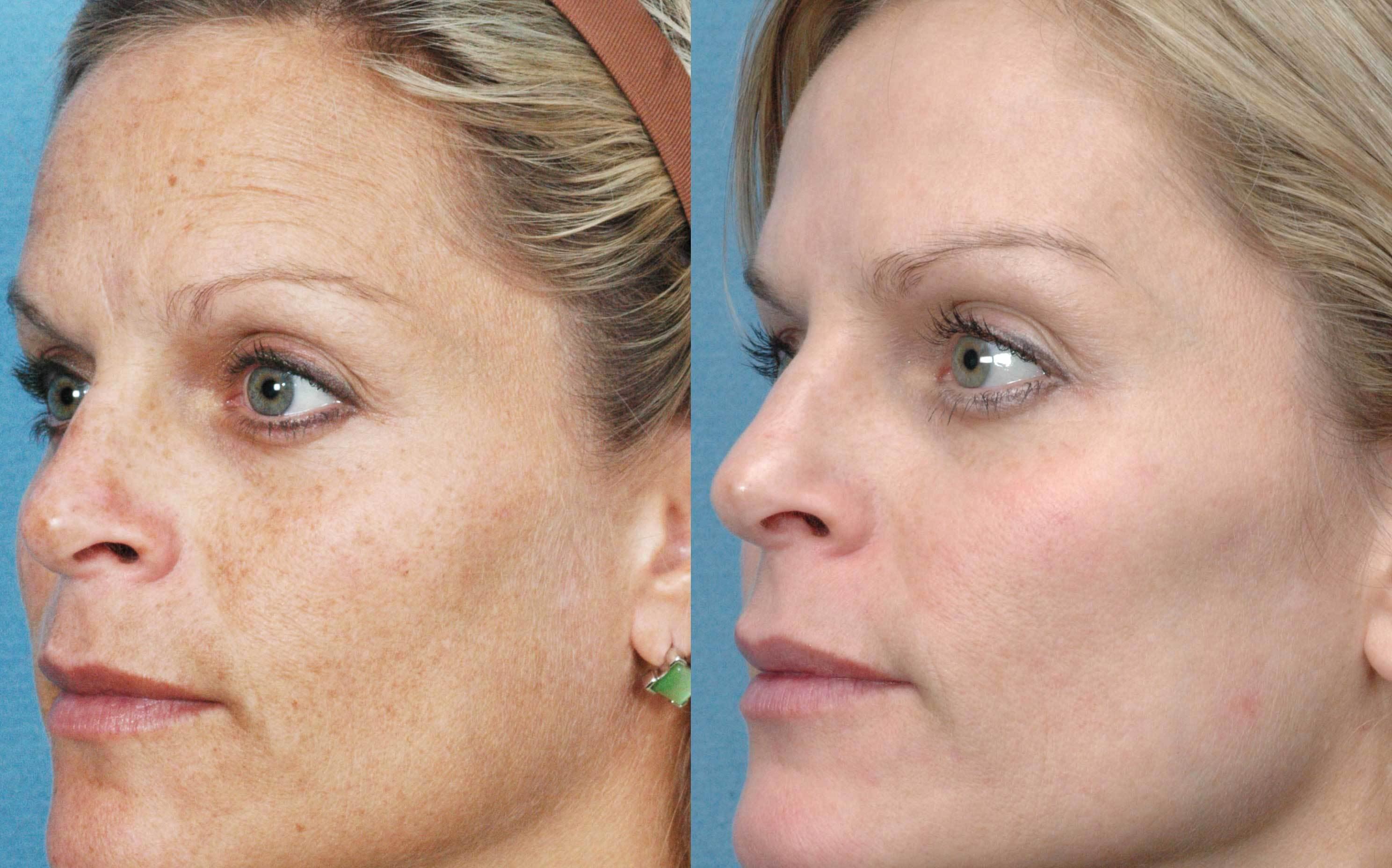 hogyan lehet megszabadulni az arc vörös foltjaitól a horzsolások után