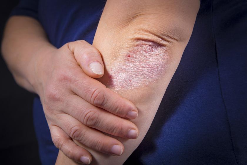illóolajokkal pikkelysömör kezelése típusú vörös foltok a hasi fotón