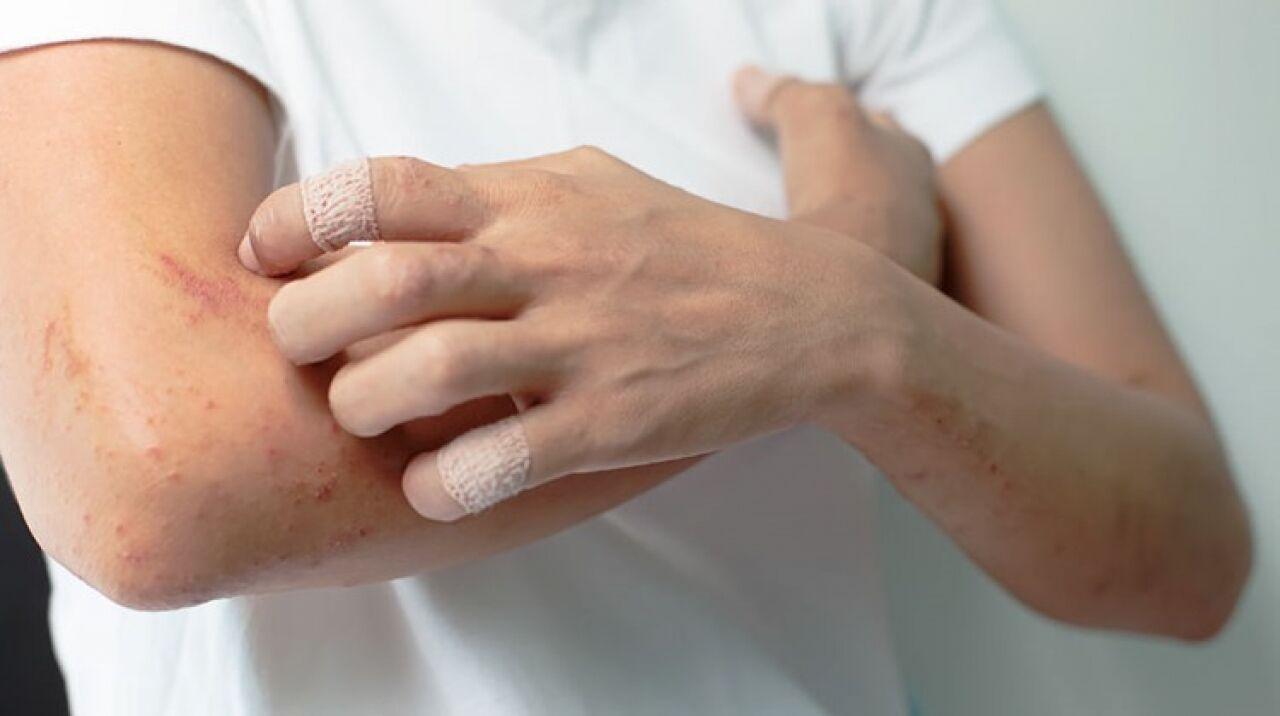 illóolajokkal pikkelysömör kezelése hogyan kezelik a pikkelysömör uroban