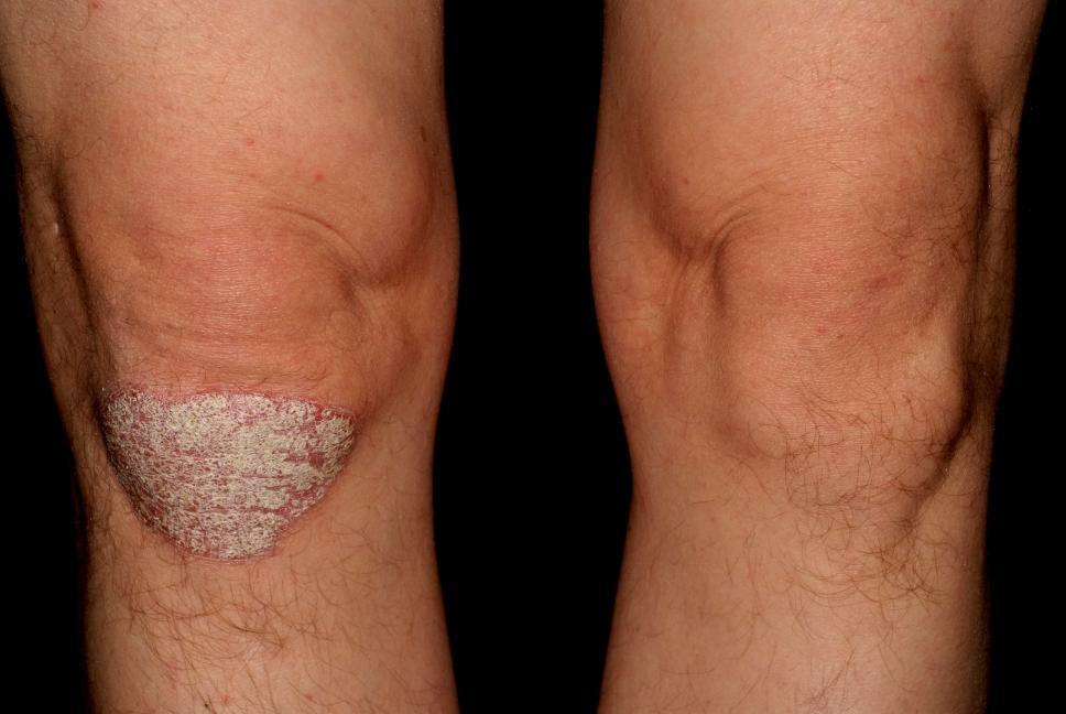 immunmodulátorok pikkelysömör kezelésére miért vörös foltok a testen és viszket