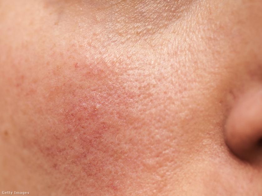 irritáció az arcon vörös foltok fotó a bőrön lévő foltok vörösek és érdesek