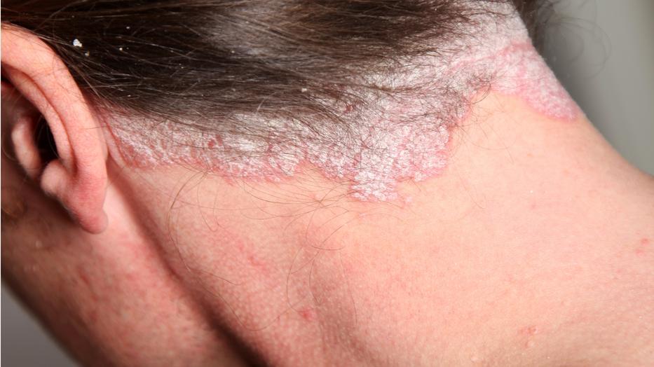 vörös foltok a hátsó viszketés kezelésén pikkelysömör kezelésére elecampane