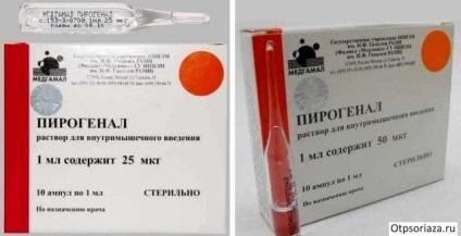 kalcium-glükonát injekciók pikkelysömör kezelésére