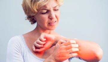 kiütés a bőrön vörös foltok formájában a hátán lévő felnőtteknél