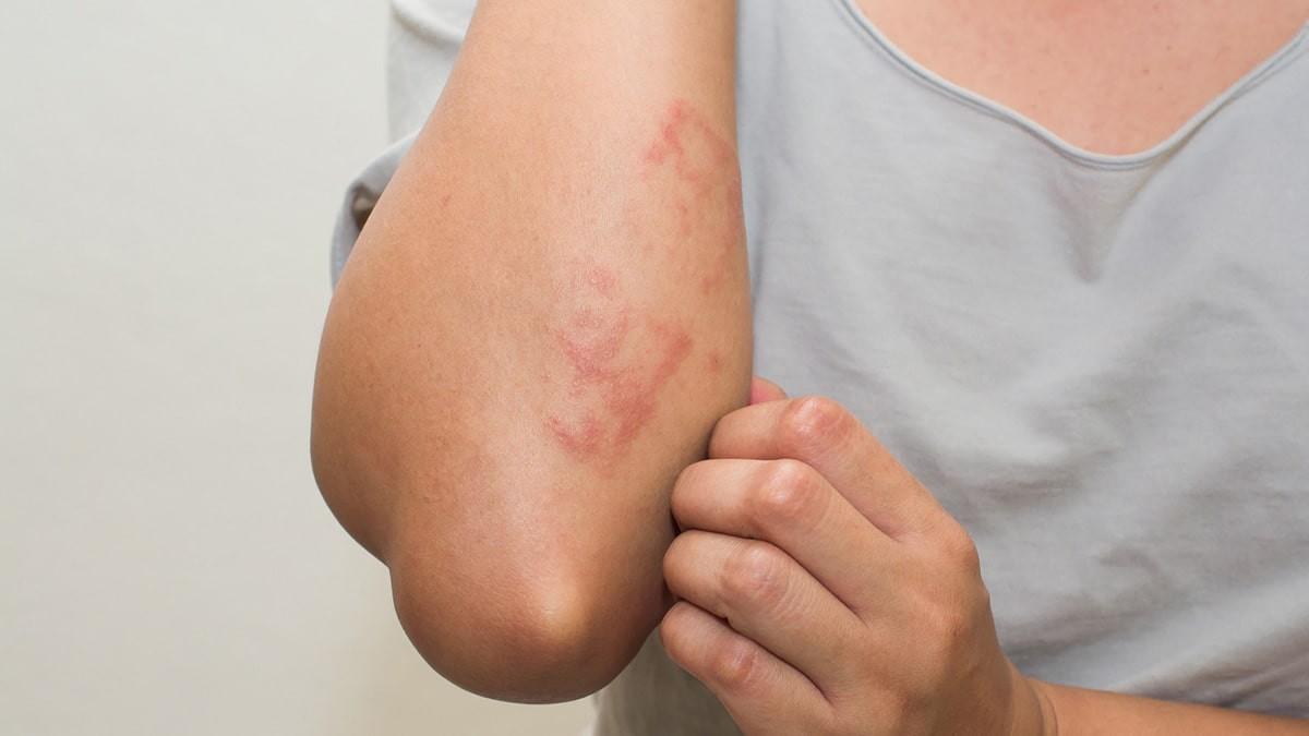 kiütés a bőrön vörös foltok formájában az állon