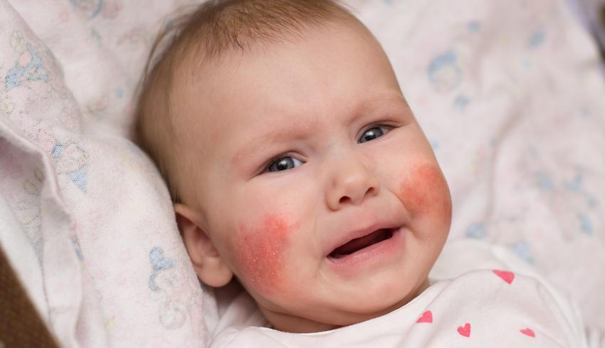 enyhén domború vörös folt jelent meg az arcon