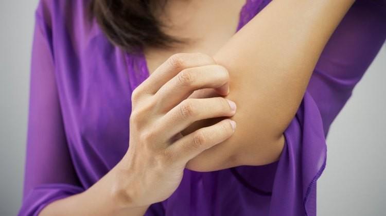 könyök pikkelysömör kezelése jóddal vörös foltok pontok formájában a lábakon